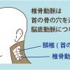 椎骨動脈の圧迫により頚性めまいが引き起こされる