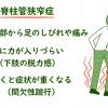 脊柱管狭窄症の症状