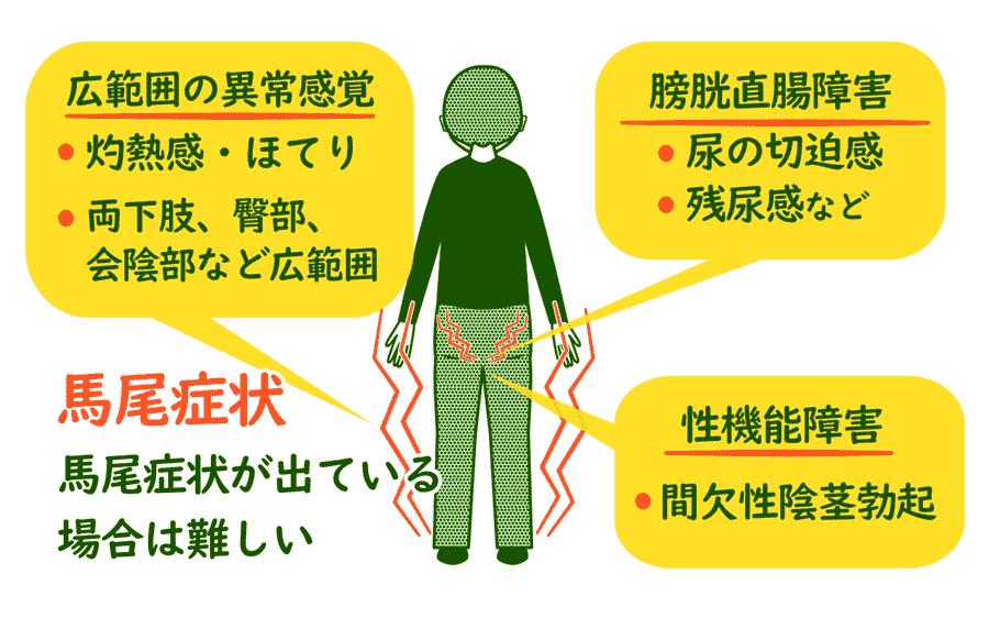 脊柱管狭窄症の馬尾症状
