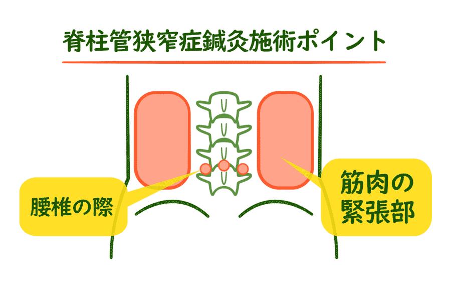 脊柱管狭窄症の腰椎の鍼灸施術ポイント