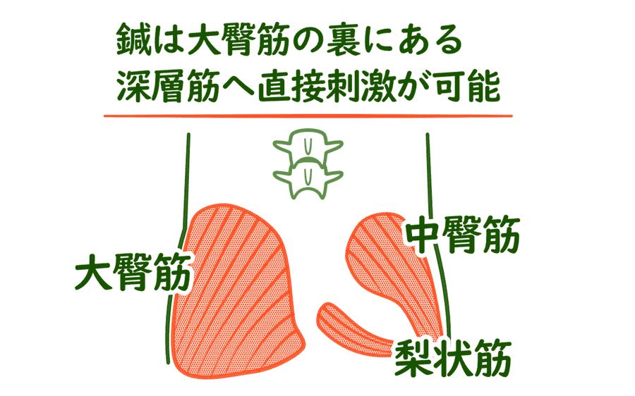 脊柱管狭窄症の臀部の鍼灸治療ポイント