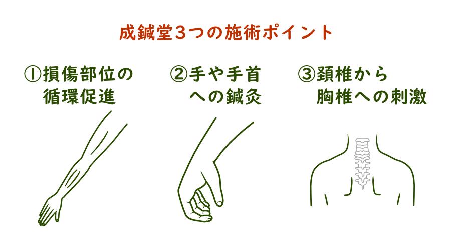 成鍼堂(東京練馬)の橈骨神経麻痺への鍼灸